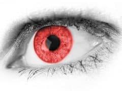 Colère oeil rouge